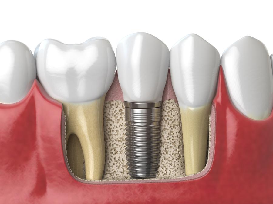Implantologia dentale: tutto quello che forse non sai